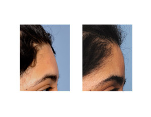 Female Forehead Augmentation  result side view Dr Barry Eppley Indianapolis
