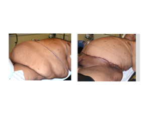 Large Abdominal Panniculectomy intraop result left oblique view Dr Barry Eppley Indianapolis