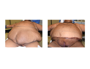 Large Abdominal Panniculectomy result intraop Dr Barry Eppley Indianapolis