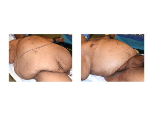Large Abdominal Panniculectomy result intraop right oblique view Dr Barry Eppley Indianapolis