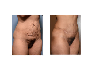 MR Tummy Tuck result oblique view