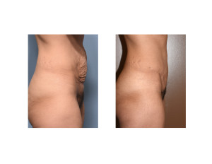 MR Tummy Tuck result side view