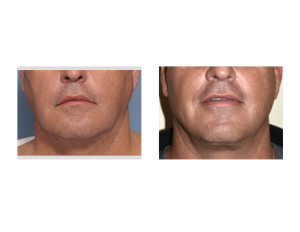 Male Lower Facelift result front view Dr Barry Eppley Indianapolis