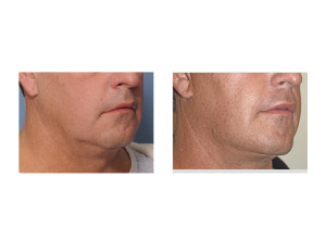 Male Lower Facelift result oblique view Dr Barry Eppley Indianapolis