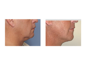 Male Lower Facelift result side view Dr Barry Eppley Indianapolis