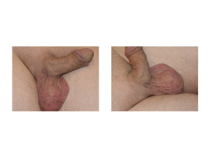 Right Scrotal Scar