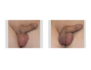 Right Testicular Implant Reconstruction result Dr Barry Eppley Indianapolis