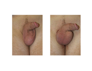 Right Testicular Implant result Dr Barry Eppley Indianapolis