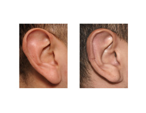 Right Vertical Ear Reduction result Dr Barry Eppley Indianapolis