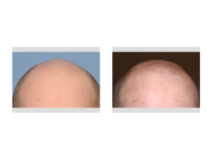 Sagittal Ridge Skull Reshaping result front view Dr Barry Eppley Indianapolis