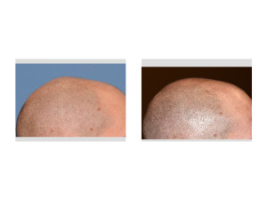 Sagittal Ridge Skull Reshaping result side view Dr Barry Eppley Indianapolis