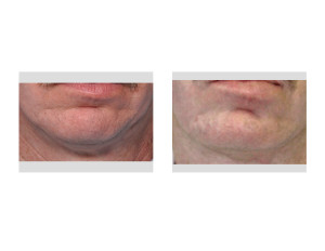 Square Chin Implant replacement result Dr Barry Eppley Indianapolis