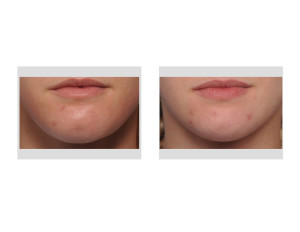 Submental Chin Reduction Reshaping result front view Dr Barry Eppley Indianapolis