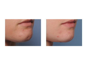 Submental Chin Reduction Reshaping result oblique view Dr Barry Eppley Indianapolis