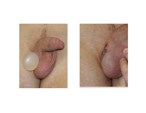 Testicular Implant and Incision Dr Barry Eppley Indianapolis