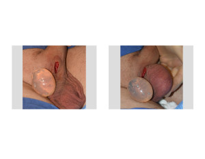 Testicular Implant intraoperative sizing Dr Barry Eppley Indianapolis