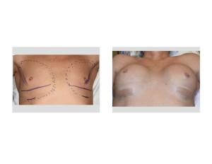 Transgender Bresat Augmentation intraop result 2 Dr Barry Eppley Indianapolis