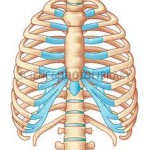 anterior rib removals