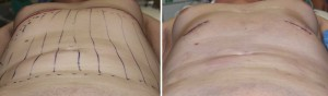 Anteriior Rib Removal Surgery intraop result below view Dr Barry Eppley Indianapolis