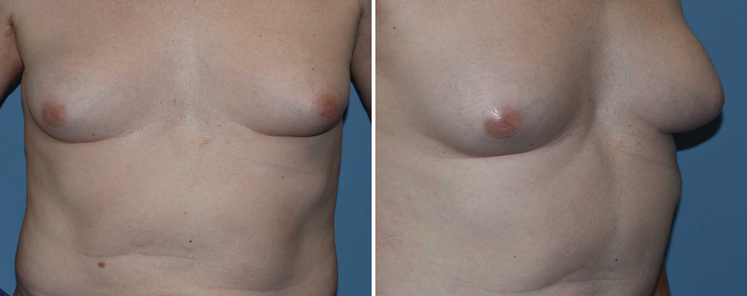 Plastic Surgery Case Study - Transgender Rib Removal -5449
