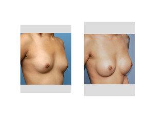 Asian Female Breast Augmentation result oblique view Dr Barry Eppley Indianapolis