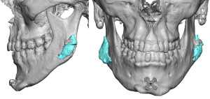Bone Overgrowth Jaw Angle Implants Dr Barry Eppley Indianapolis