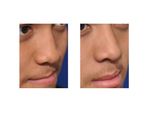Cleft Rhinoplasty and Cleft Lip Revision result oblique view Dr Barry Eppley Indianapolis