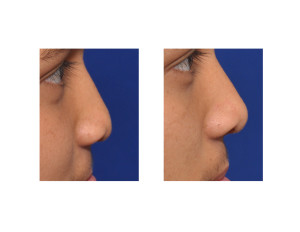Cleft Rhinoplasty and Cleft Lip Revision result side view Dr Barry Eppley Indianapolis