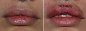 Cupid's Bow Excision before and after results Dr Barry Eppley Indianapolis