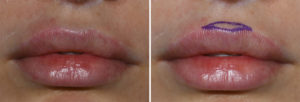 Cupid's Bow Reduction markings Dr Barry Eppley Indianapolis