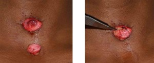 Dermal Fat Graft to Tracheostomy Scar Dr Barry Eppley Indianapolis