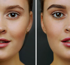Outcome Assessment of Comprehensive Facial Feminization