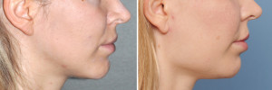 Female Square Jaw Angle Implants result side view Dr Barry Eppley Indianapolis