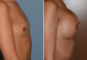 Hispanic Breast Augmentation result side view Dr Barry Eppley Indianapolis