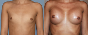 Hispanic Breast Augmentation results front view Dr Barry Eppley Indianapolis