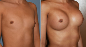 Hispanic Breast Augmentation results obique view Dr Barry Epley Indianapolis