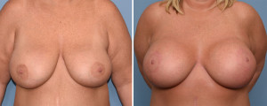 Large Breast Implants with Lift result front view