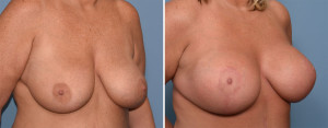 Large Breast Implants with Lift result oblique view