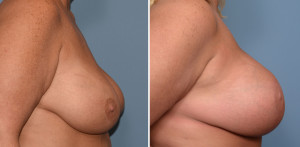 Large Breast Implants with Lift result side view