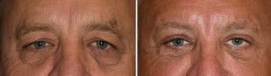 Male Transpalpebfal Browlift result front view Dr Barry Eppley Indianapolis