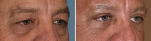 Male Transpalpebral Browlift results oblique view Dr Barry Eppley Indianapolis