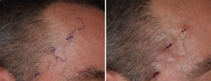 Right Temporal Artery Ligation Dr Barry Eppley Indianapolis
