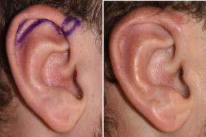 Small Vertical Ear Reduction result Dr Barry Eppley Indianapolis