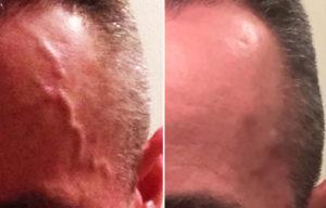Temporal Artery LIgation result Dr Barry Eplpey Indianapolis