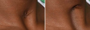 Tracheostomy Neck Scar Retraction