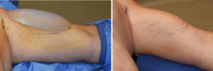 Bicep Implant immediate result Dr Barry Eppley Indianapolis