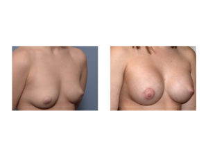 Breast Augmentation with right nipple lift results oblique view Dr Barry Eppley Indianapolis