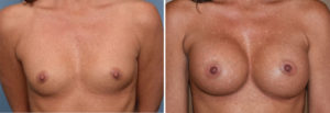 Breast Implants and Cleavage result front view Dr Barry Eppley Indianapolis