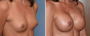 Breast Implants and Cleavage results oblique view Dr Barry Eppley Indianapolis