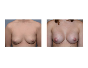 Breast augmentation with right nipple liftresults front view Dr Barry Eppley Indianapolis
